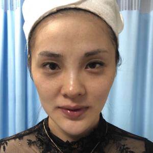 最近的皮肤状态应该是最好的了,面颊不凹陷,皮肤充满胶原,热玛吉带来的抗衰效果是其他产品不能替代的。做热玛吉推荐玛丽亚