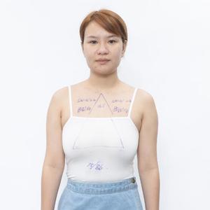做乳房下垂矫正之前,在网上查了很多,我看到有些姐妹说她做了乳房矫正后没几个月就恢复原状了,那个时候特别担心自己会跟她们一...