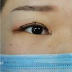 梦幻小鹿眼+祛眼袋