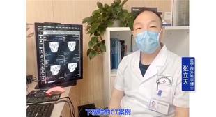 颌面专家张立天下颌角手术术前术后CT讲解
