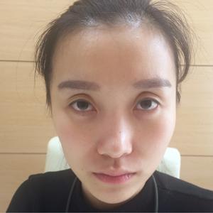 现在真的很喜欢自己的鼻子,发现自己照相真的上镜了很多呢,现在想想,做手术之前的紧张和不安也算是值得了,当时的决定太对了,...