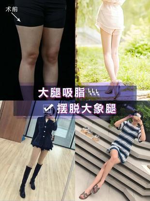 [案例分享]大腿吸脂摆脱大象腿