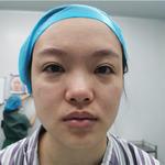 肋软骨隆鼻项目日记