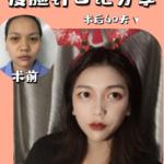 瘦脸针日记分享