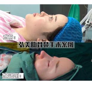 為什么隆鼻手術價格差別這么大?