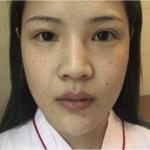 鼻部多项术