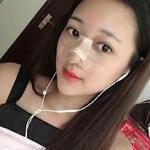 鼻综合—天津美莱整形美容医院