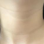 嗨体去颈纹