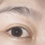 悦华美容眼部整形失败修复