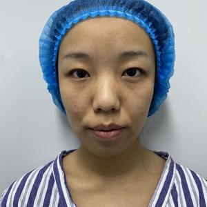 割双眼皮对外貌的影响确实很大,因为眼睛是心灵的窗户,拥有一个好看的眼睛能给颜值加分,而百分之七十五的亚洲都是单眼皮或者内...