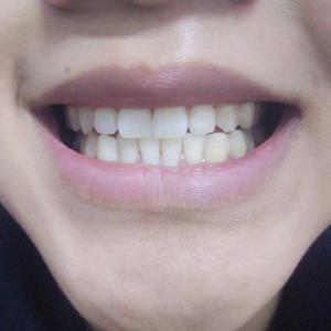 我本来是去检查智齿的,因为智齿疼了有两周了不见好,到了后医生检查完说要等不疼的时候再去拔智齿,因为现在还有炎症,伤心啊,...