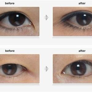 【种草】眼综合深度解析,单纯割个双眼皮就能变美?