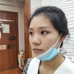 隆鼻术后记