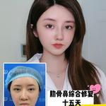 鼻部修复手术