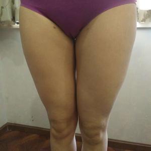 手术后4个月了,我来给集美们出反馈啦。整体我还是很满意的,大腿差不多细了8厘米,也没有反弹,目前应该固定住了,后续我要管...
