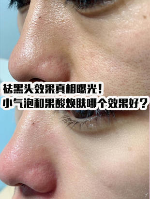 祛黑头效果真相曝光!小气泡和果酸焕肤哪个效果好?