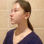 超肋隆鼻术