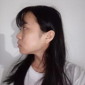 自體脂肪填充面部第187天:掰著手指頭數了一下,今天距離我填充面部已經187天了,其實這187天內,我還去割了個雙眼皮,...
