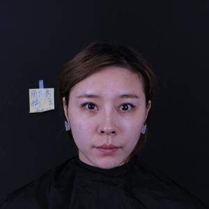 ?玻尿酸填充臉部算是一種微創的醫美手段,很多人覺得不用過于重視術后的恢復護理的階段,但就是同樣的操作和材料,每個人的術后...
