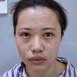 【青岛华颜美-双眼皮修复术后第88天】做完双眼皮修复术后快满三个月了,医生说过了三个月就是完全恢复好了,现在眼睛形态真的...