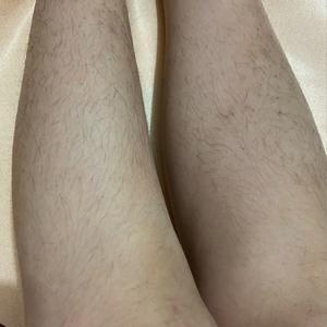 小腿脱毛当天:看我两条小腿,腿毛是不是很可怕,是不是像个汉子似的?我一到夏天我都不敢穿短裤和裙子的,这要是被男生看到,不...