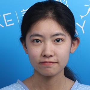 """我在常州美萊醫院做的""""至in鼻綜合""""這個項目,做的是膨體隆鼻和耳軟骨墊鼻尖。鼻子做的我很喜歡,不是夸張的類型,比較自然。..."""