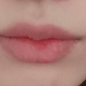 唇部手术距离现在已经有半年时间了,恢复的情况也如大家目前所看到的,效果一直都是那么棒,恢复得相当的自然,唇形非常性感好看...