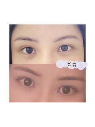 【开外眼角+眼睑下至】这两个手术能改善什么样的眼部问题呢?