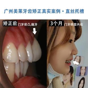 🦷牙齿矫正要多久❓