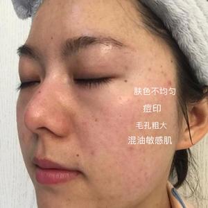常州柏美光子嫩膚治療7天后?????第一次做完光子嫩膚會有輕微的結痂,一般在一周內就會脫落,現在一周的狀態還是很不錯的,...