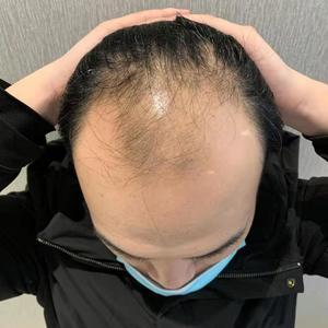 算起来大概有一个月了,头发没有其他异常的现象。而且越来越多的人问我是在哪里植发,效果好就是最好的广告么。植发区现在长得差...