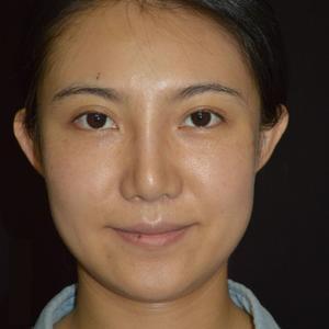 常州柏美Fotona4D治療7天后?????現在是做完一周了,整個面部沒有緋紅了,面色比較白皙。這幾天洗臉照鏡子比較明顯...