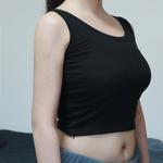 手臂吸脂术后分享