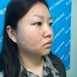 双眼皮手术