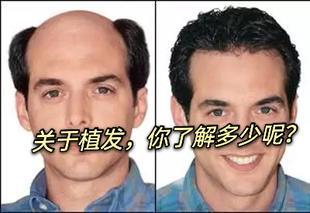 关于植发,你了解多少呢?
