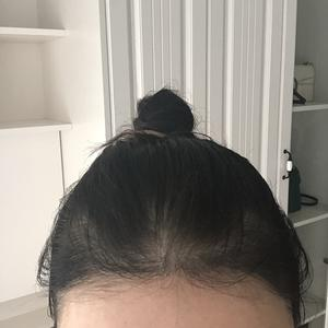 植發際線快一年時間了,我又來交個作業啦馬上快到一年了,原本的小絨毛已經長的挺直啦,沒有出現特別卷的情況,密度還可以吧,也...
