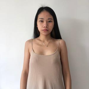 做完胸部整形,马上100天了,现在的内衣都要买大号的了,之前的穿上都太紧了,对了,我的胸型很对称,很满意,没做胸部之前虽...