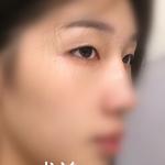 双眼皮手术后