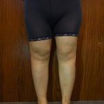 自体脂肪丰全面+大腿环吸