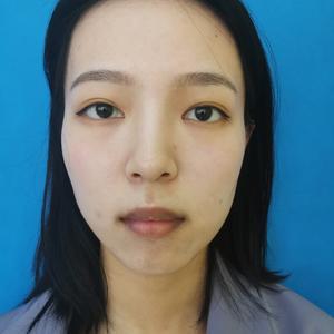 嘴唇厚是可以改变的,通过手术切除部分组织来达到改薄的目的。术后需要冰敷帮助消肿,为了防止伤口裂开,所以要食用流食,为了防...