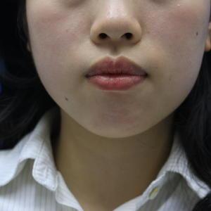 今天距离做M唇手术已经四十天了,很多干饭人都觉得这个手术是一项很苦恼的手术,因为伤口在口腔,就算不想忌口也是会害怕因为口...