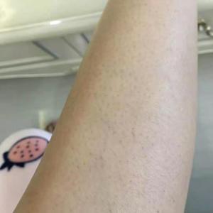 变美项目:脱毛大小腿变美诉求:想做脱毛很久了,春天一到全身长毛,最难受的是每每出汗的时候,又粘又湿的,感觉就很脏,正好之...