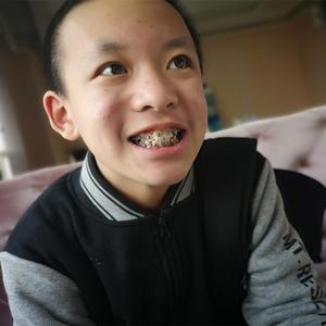 【牙齒矯正第66天】今天帶兒子去醫院復診了,順便拍了一下照片分享給大家。我兒子的現在的咬合正常了很多,之前拔牙的空隙也慢...