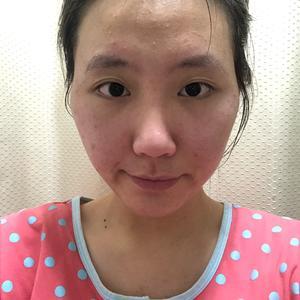这么长时间过去,脸上填充的脂肪基本没有多大的变化,现在真心觉得脸部填充脂肪比玻尿酸靠谱多了,主要是玻尿酸后期吸收了还得去...