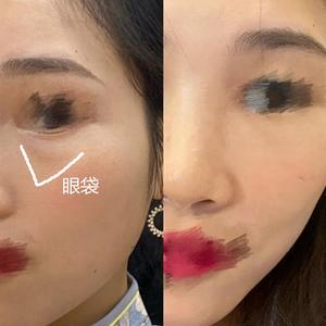 变美项目:眼袋问题,需要手术去除变美诉求:眼袋深让我的眼睛看起来整个肿肿的,眼皮下方也是鼓鼓的一块,又没有卧蚕的那种可爱...