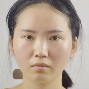 第5天脸上的情况正常了很多,脸上的针口消了很多,鼻子上的还是比较明显。额头和脸颊暂时还是有些肿的,每天都在冰敷消肿,饮食...