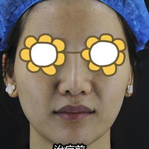 变美项目:热拉提变美诉求:我的双下巴一直都要,一低头还挺明显的,而且加上下颌缘明显不佳,苹果肌也有点下垂,起码显老很多。...