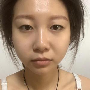 手术两个月,我已经自信化妆了!!其实素颜状态下眼皮还是比较肿的,化妆之后就自然很多,说真的双眼皮上妆也太好看了叭!!双眼...