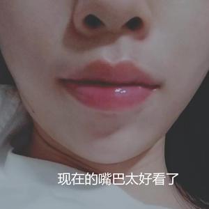 变美项目:厚唇改薄变美诉求:要说我脸上最不满意的五官,就是嘴巴了,厚厚的上下唇像是两根腊肠,而且没有好看的形状,别人的厚...